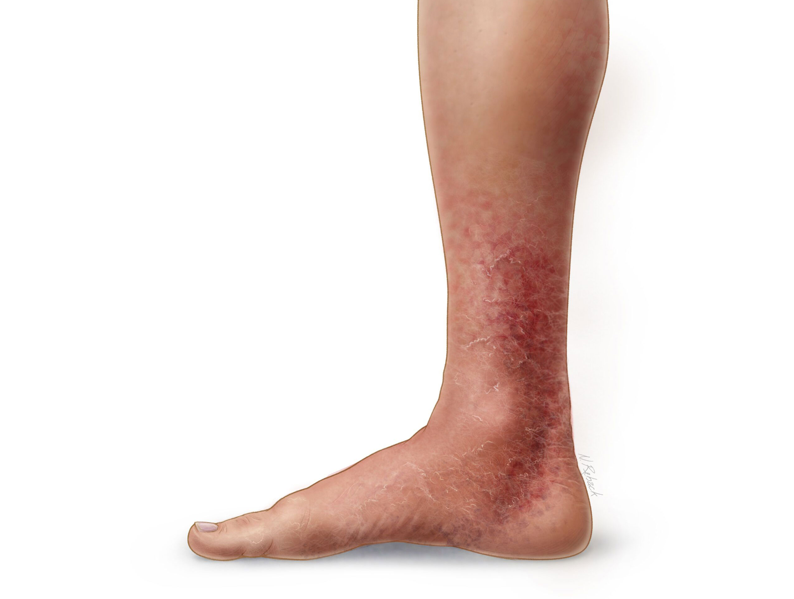 Medical illustration of a leg with venous discoloration