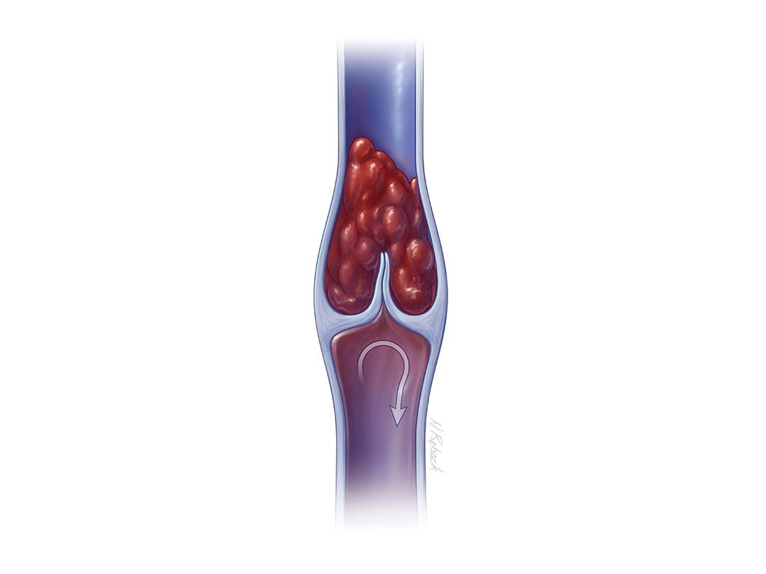 Illustration deep vein thrombisis