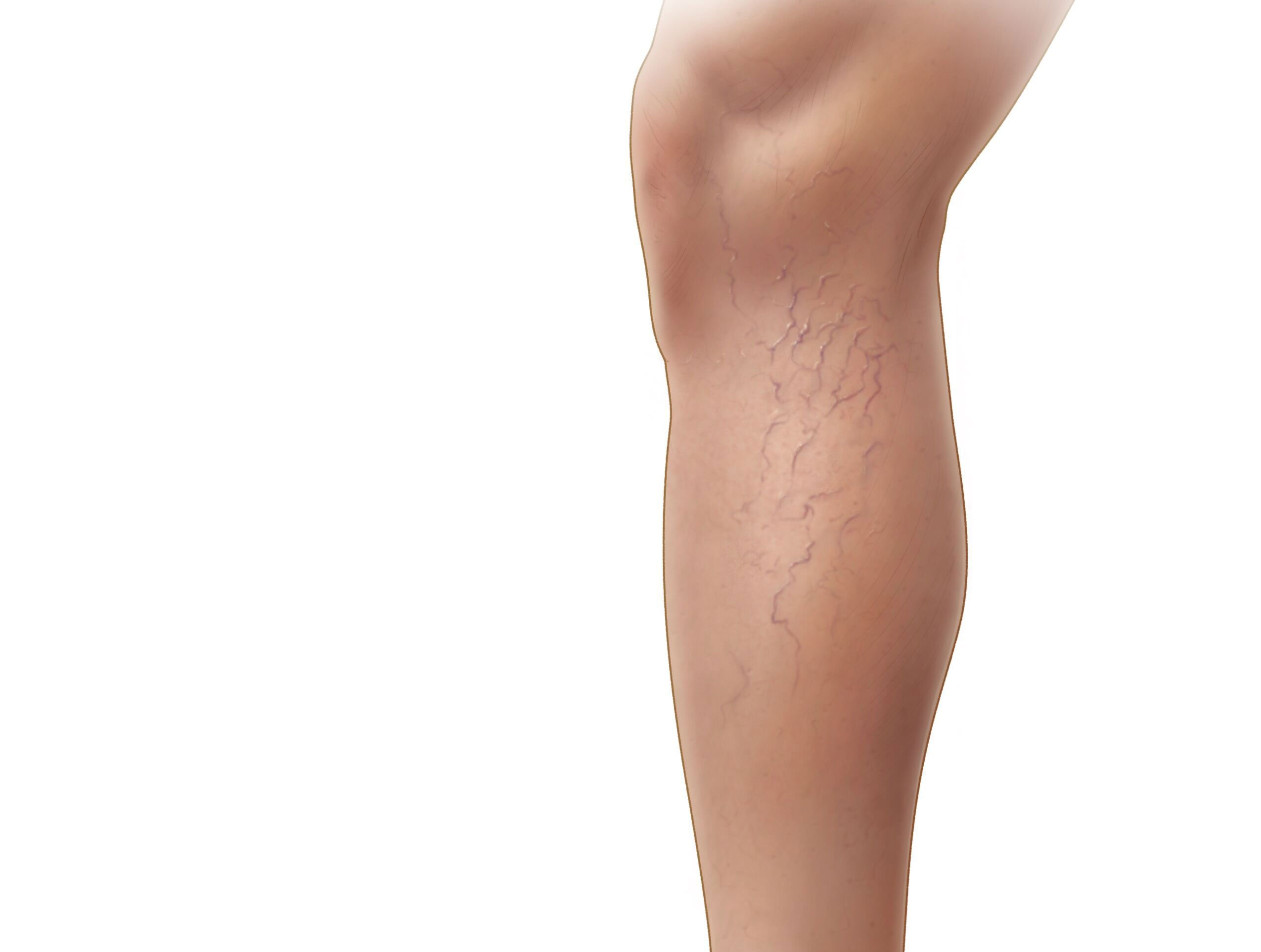 Medical illustration of a leg with spider veins