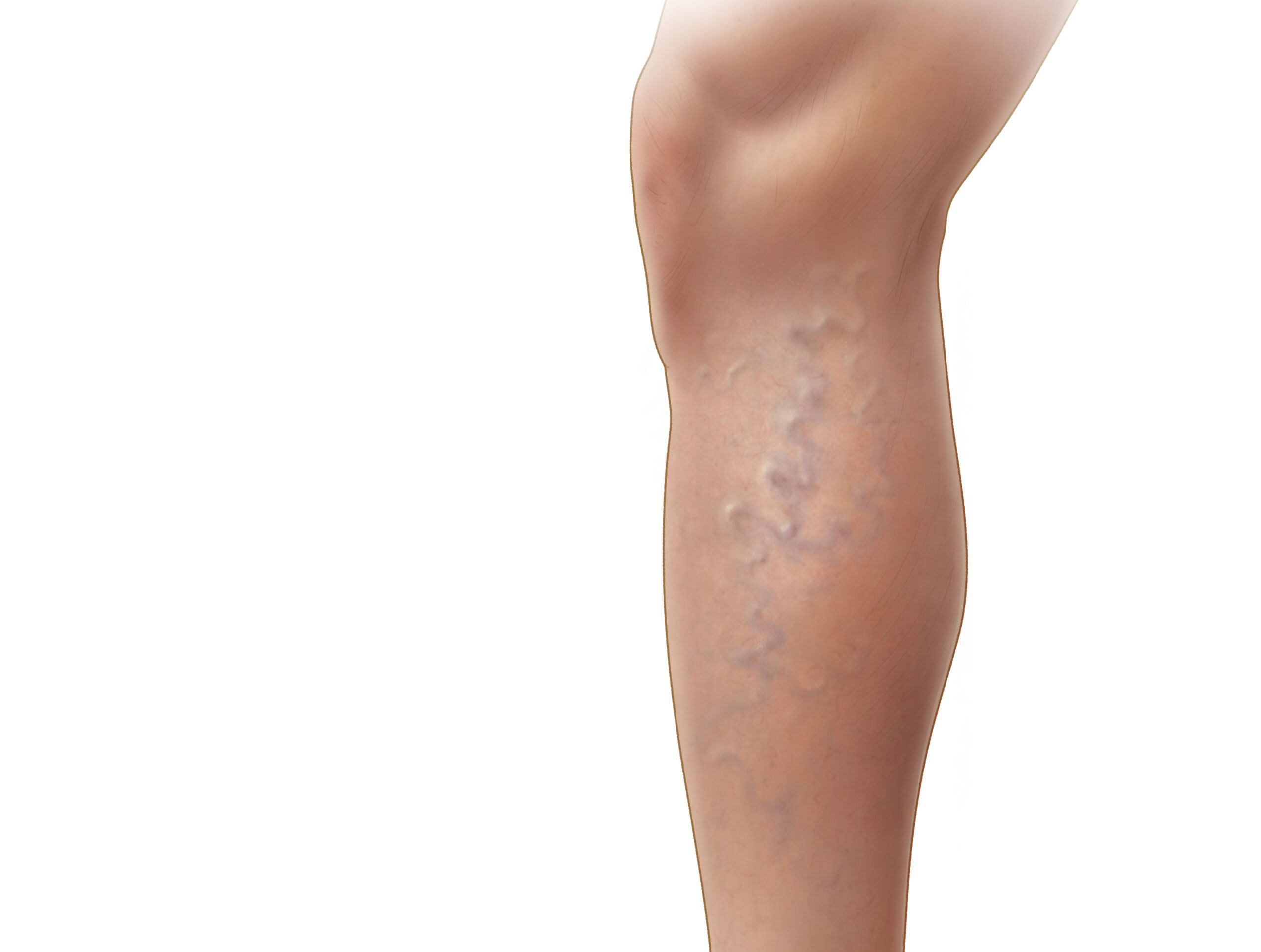 Medical illustration of a leg with varicose veins